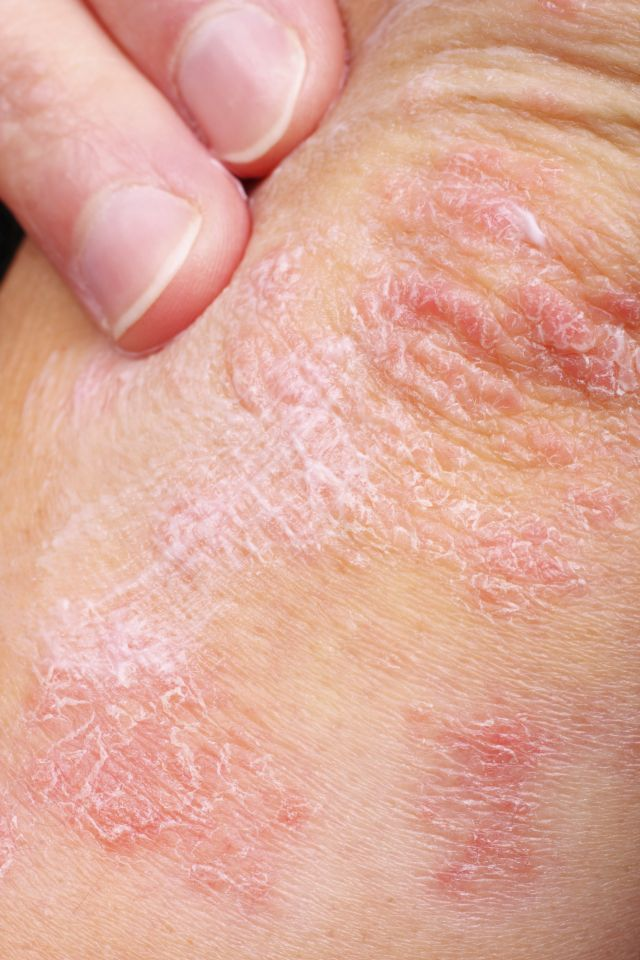 Two-Step Approach to Treating Psoriasis with Essential Oils 1